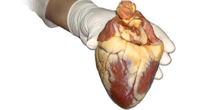 heart-1400726